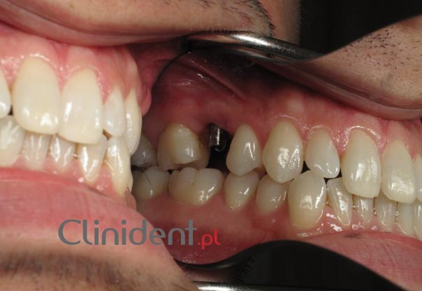 Implant instead of a single tooth