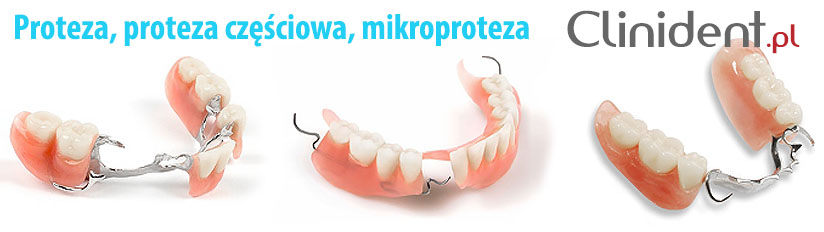 Microprotese, partial denture Wroclaw